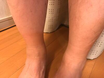 足のソックスむくみ その後