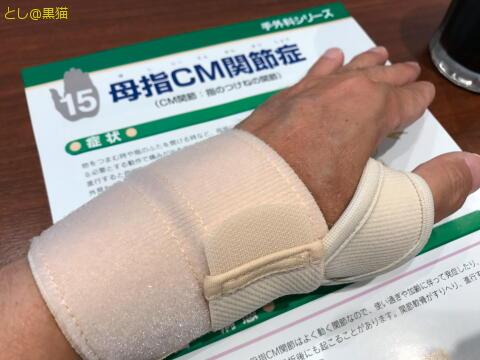 軽度の母指CM関節症もどき で保存治療