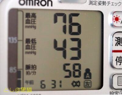 低血圧で徐脈