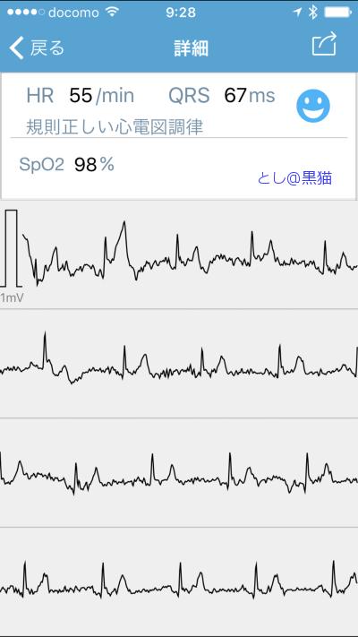 小型心電図 + パルスオキシメーター チェックミープロ B
